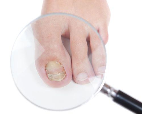 Грибок на ногте