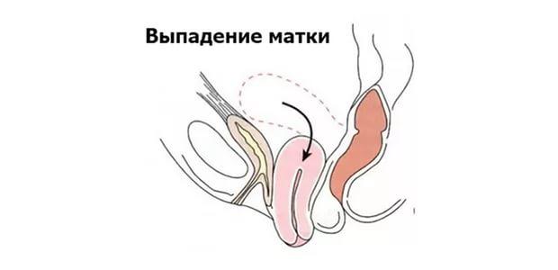 Выпадение матки у женщин пожилого возраста: симптомы и лечение