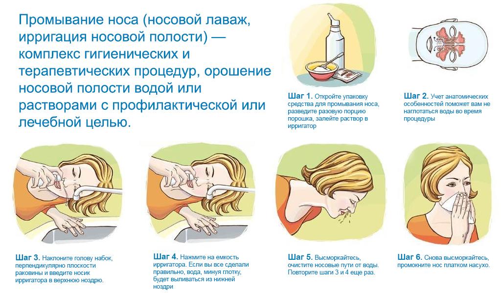 Как промывать нос самостоятельно в домашних условиях