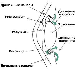 Так выглядит закрытоугольная глаукома
