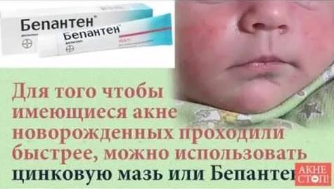 акне у новорожденных