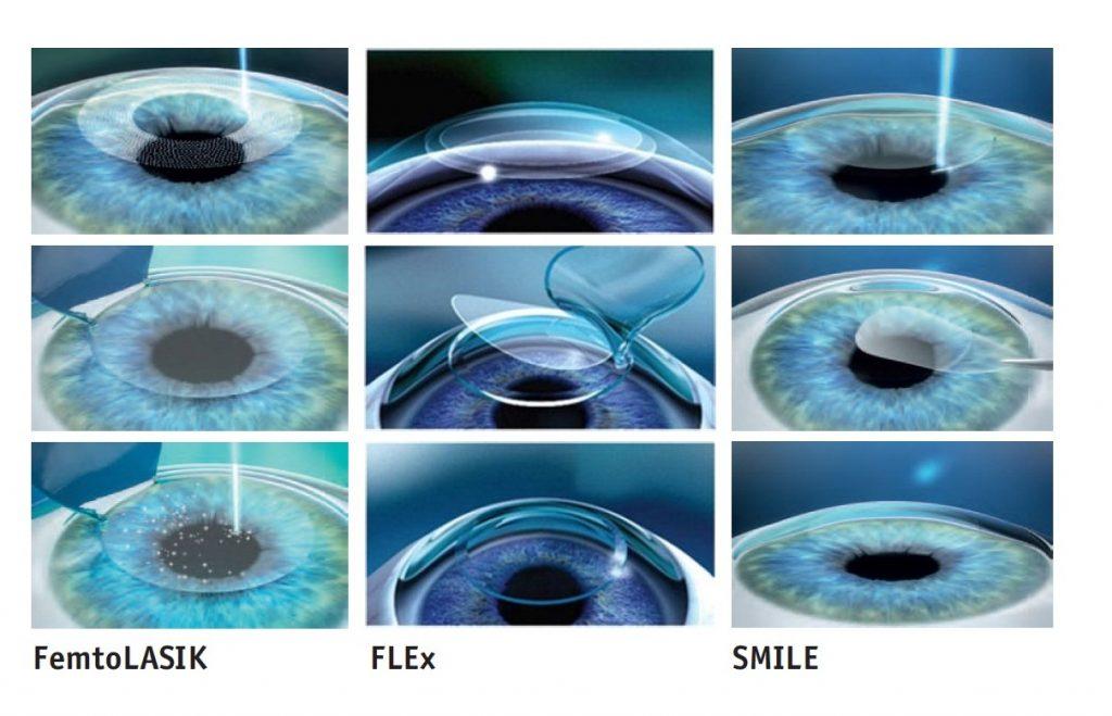 Существует несколько вариантов проведения лазерной коррекции