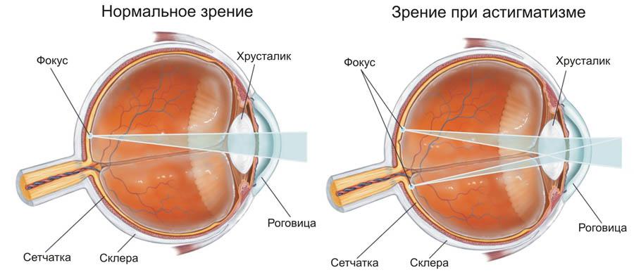Схематическое изображение офтальмологического нарушения