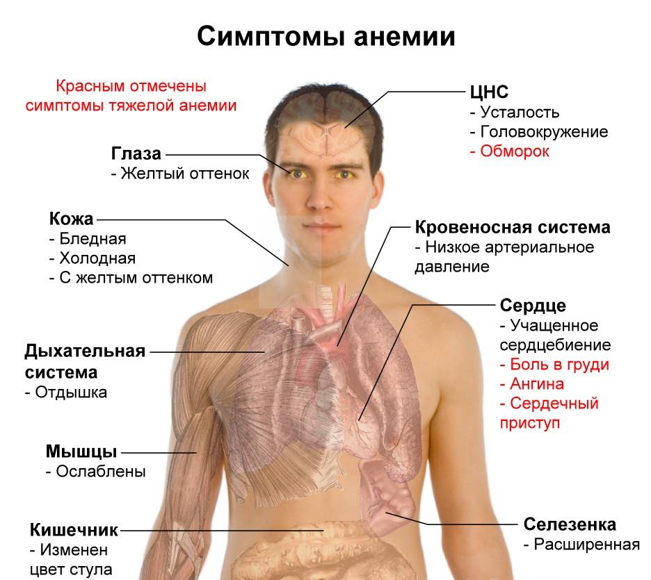 Анемия у взрослых женщин: симптомы, причины и лечение