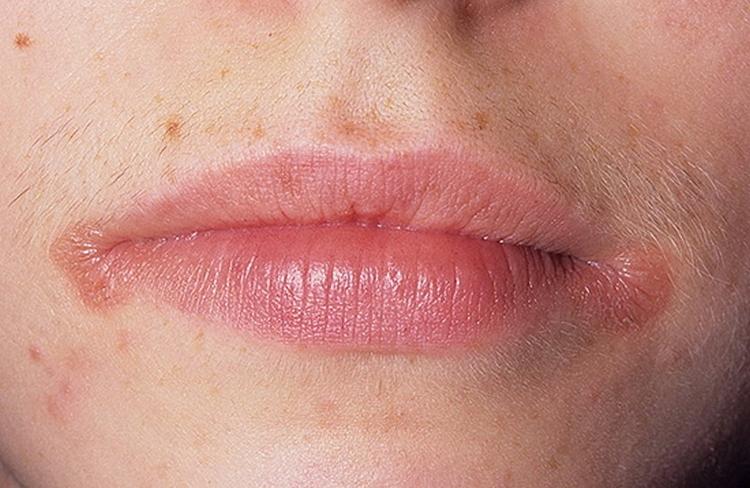 Хейлит на губах: симптомы и как лечить правильно