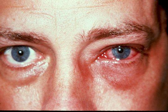 Аденовирусный конъюнктивит: симптомы и лечение