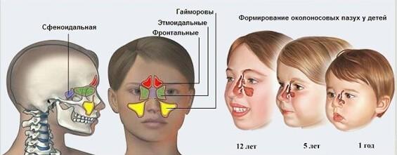 Причины синусита у детей