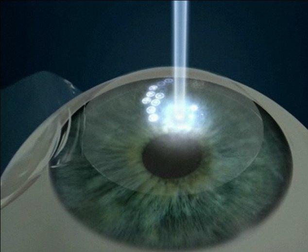 Воздействие лазера