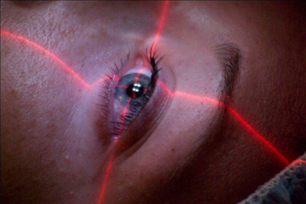 Терапия с помощью лазера имеет свои особенности