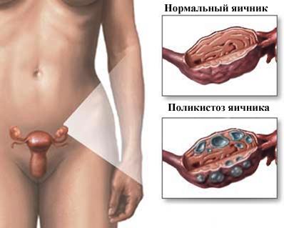 Поликистоз яичника