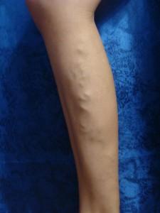 Проявление варикоза