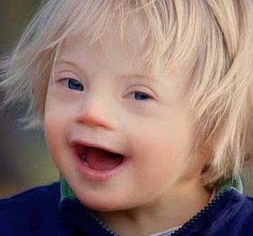 Синдром Дауна часто сопровождается офтальмологическими патологиями