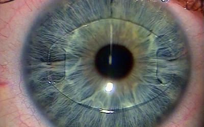 Установленная в глаз факичная линза