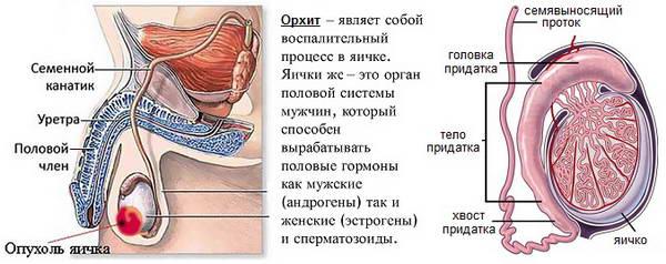 Последствие свинки - орхит яичка