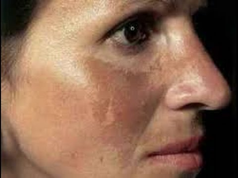 появляются коричневые пятна вокруг глаз у беременных