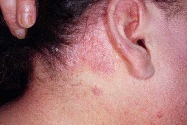 как лечить красные пятна на голове под волосами