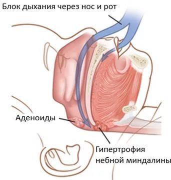 блокировка воздуха при апноэ у новорожденного