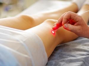Виды лечения варикоза