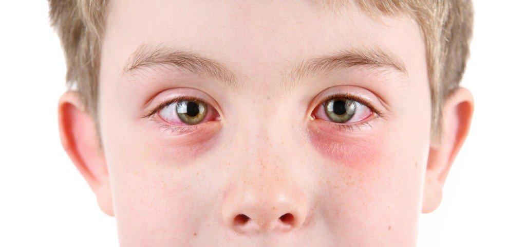 Аллергический кератит: симптомы и последствия