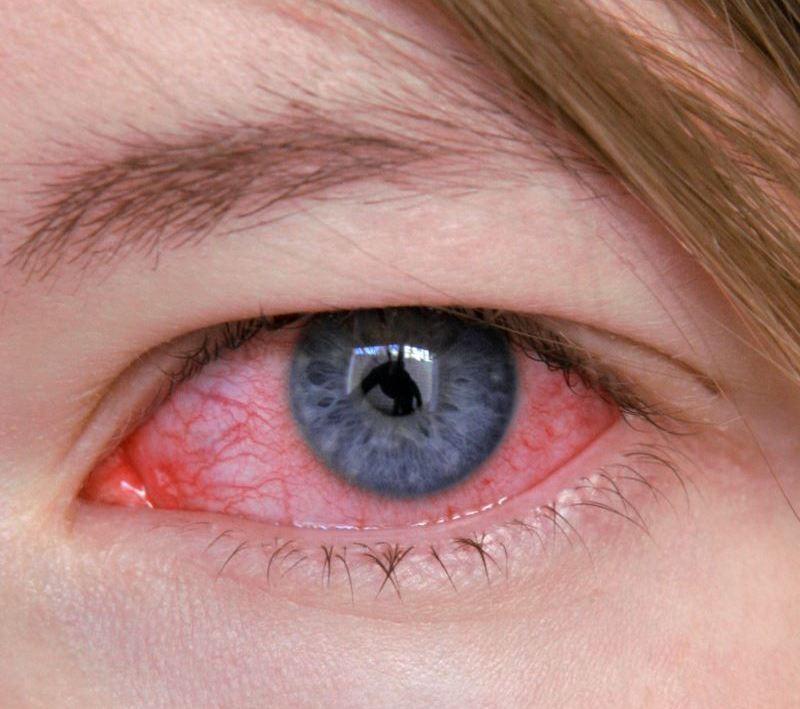 Острый кератит: особенности проявления и лечения