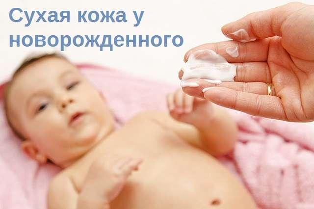 Сухая кожа у новорожденного