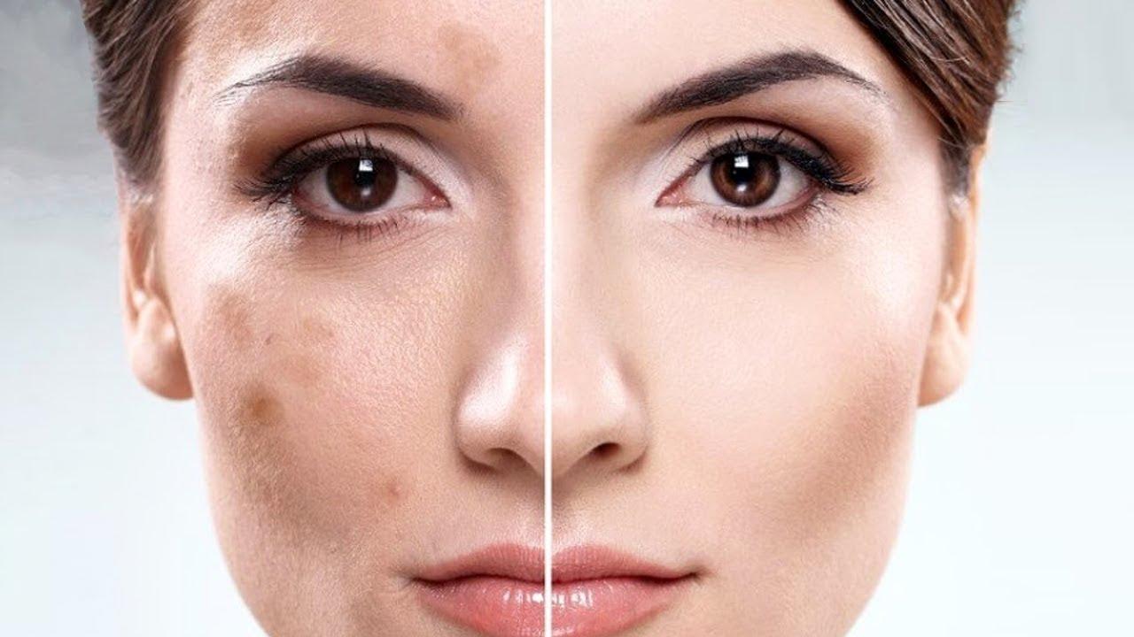 Пигментные пятна на лице: причины и как от них избавиться