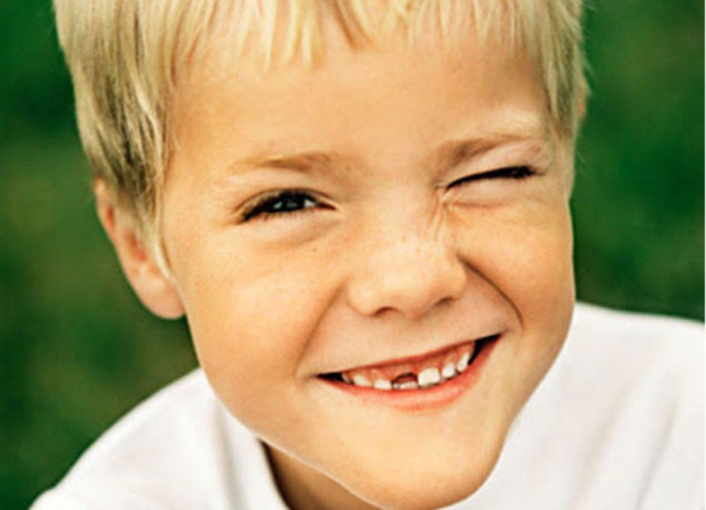 Содружественная форма характерна для детского возраста
