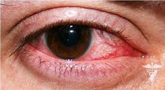 Инфекционный кератит – что это такое и как его лечить?