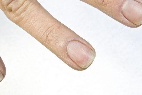 Сухость ногтей