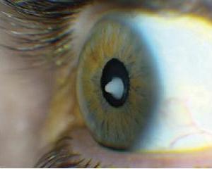 Здоровые глаза лучше больных
