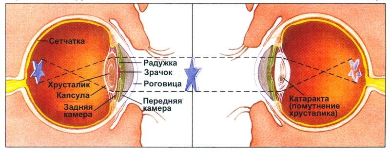 Схематическое изображение симптомов