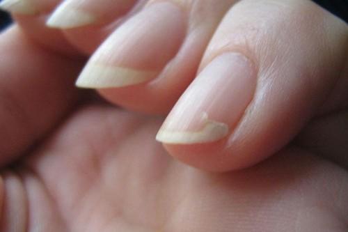 Отслойка ногтя