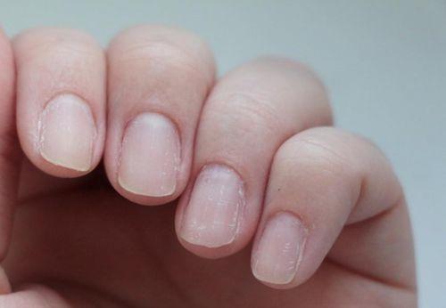Слоящиеся ногти