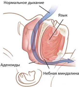 Отсутствие апноэ у новорожденного