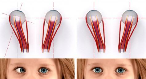 Разница между здоровым и больным глазом