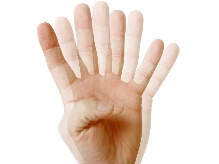 Двоение в глазах при страбизме называют диплопией