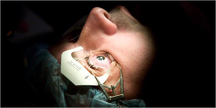 Микрохирургия глаза требует длительного периода восстановления