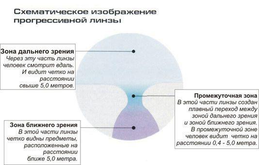 Строение бифокального изделия
