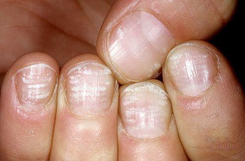 Поперечные бороздки на ногтях