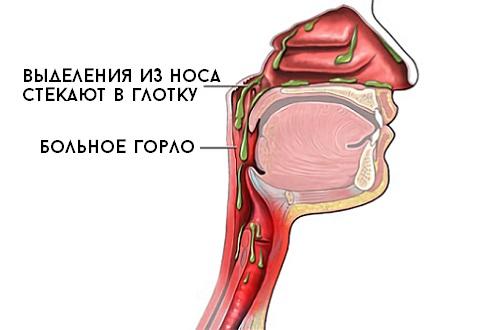 Постоянная слизь в горле не отхаркивается