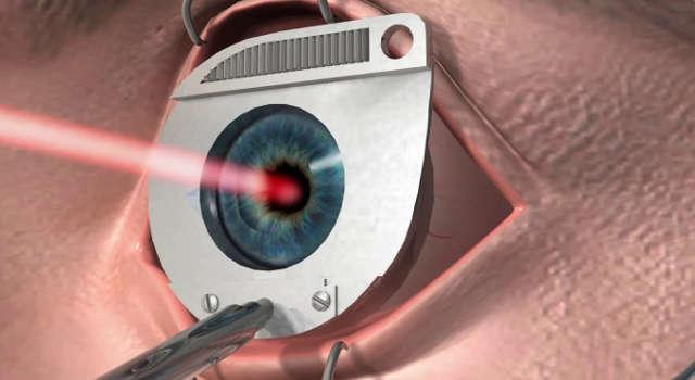 Коррекция зрения с помощью лазера - безопасный путь к выздоровлению