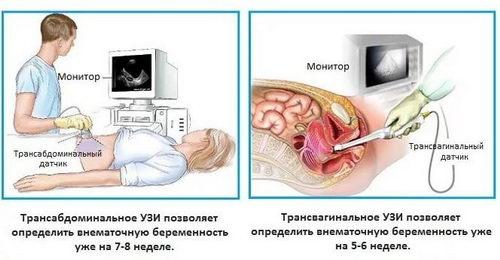 Трансвагинальный допплер при беременности