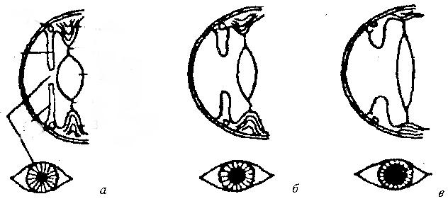 а — действие пилокарпина, б — глаз до воздействия лекарства, в — действие атропина