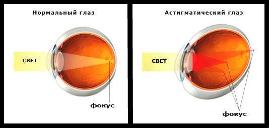 Искаженная форма глаза