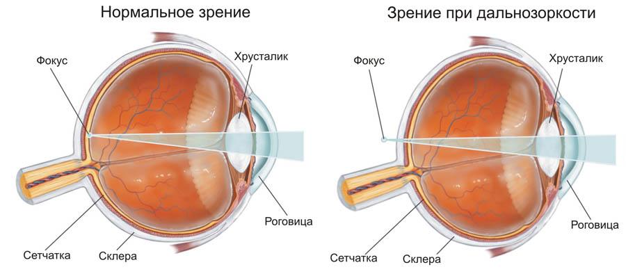 Преломление лучей при гиперметропии