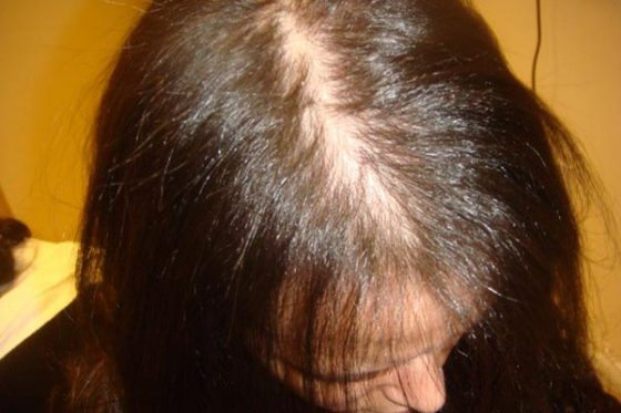 особенности лечения диффузного выпадения волос у женщин