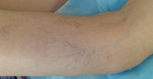 Лечение народными средствами ретикулярного варикоза нижних конечностей