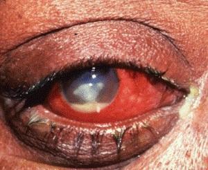 Паренхиматозный (интерстициальный) кератит: проявление и лечение