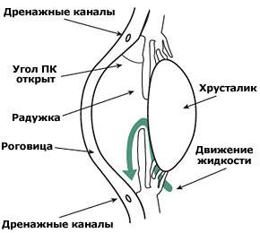 Так выглядит открытоугольная глаукома