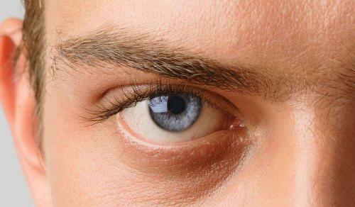 Глаз больной глаукомой
